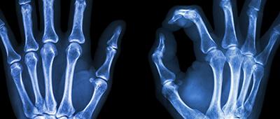Check Knochen